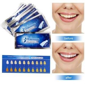 meilleur blanchisseur de dents