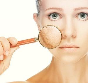 La crème anti-rougeur a-t-elle des effets secondaires sur la peau ?