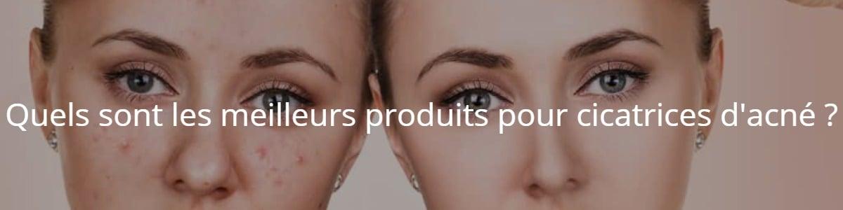 Quels sont les meilleurs produits pour cicatrices d'acné ?